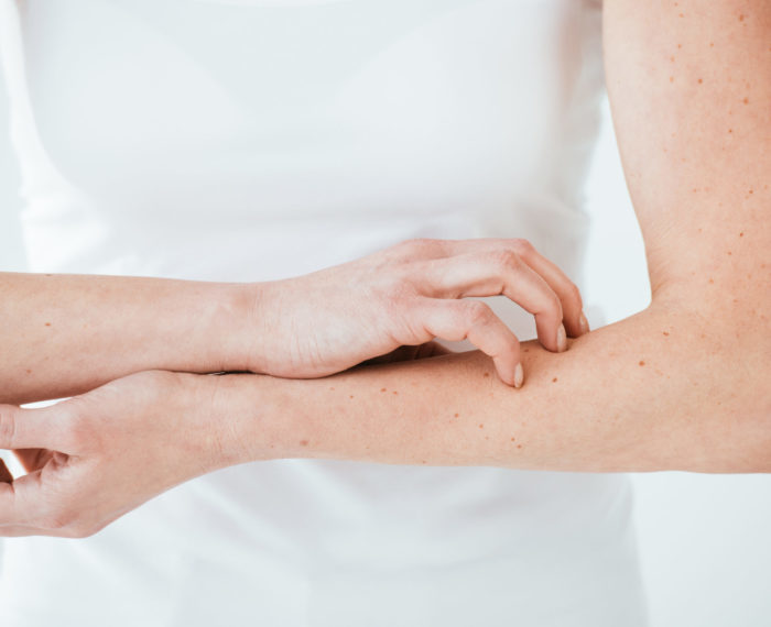 cropped view of allergic woman scratching hands on white